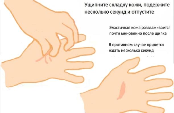 Описание: Картинки по запросу определение тургора кожи